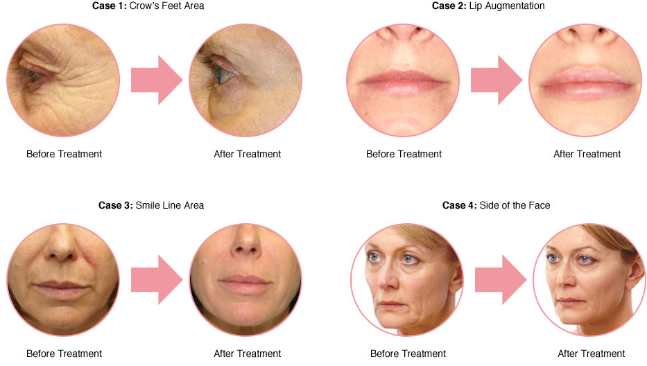 anti-wrinkle-botox-injectables