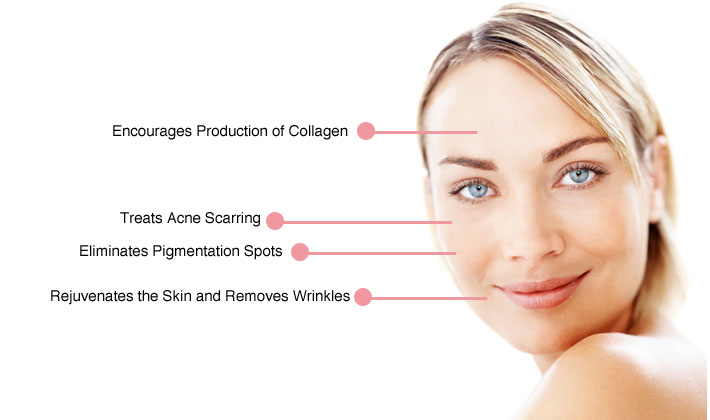Micro Needling Treatment Treating The Appearance Of Ageing