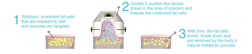 cooltec-body-sculpting_03