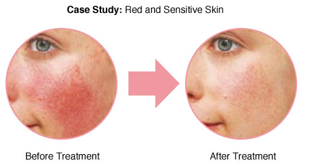 redness-sensitive-skin_02