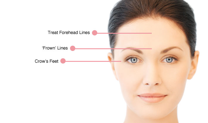 anti-wrinkle-botox-injectables1