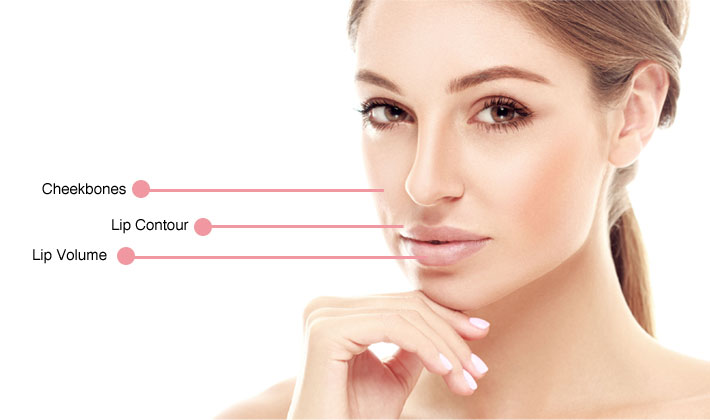 dermal-fillers-injectables