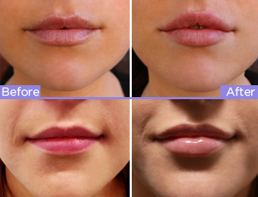 lips to love before and after