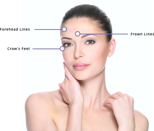 Anti Wrinkle Injections (Botox®) for Women | Juvederm® | Anti Ageing