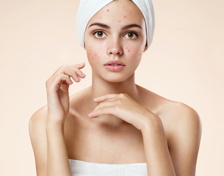 Acne treatments and procedures