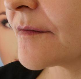 Dermal Fillers   Juvederm®   Facial Fillers   Skin Treatments
