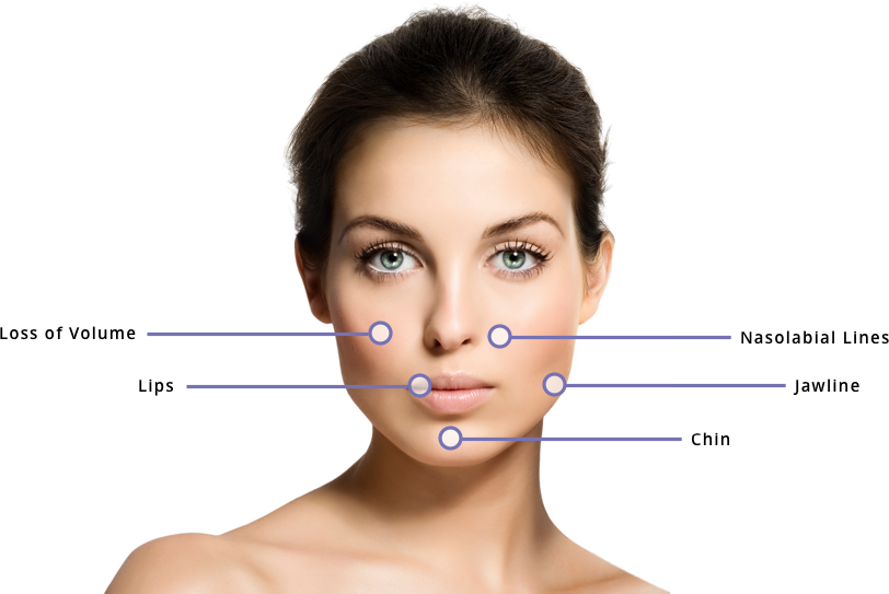 Dermal Fillers | Juvederm® | Facial Fillers | Skin Treatments