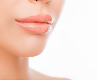 Lip Fillers | Cosmetic Injections | Dermal Fillers | Safe
