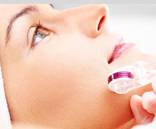Microneedling   Reduce Fine Lines & Wrinkles   Improve