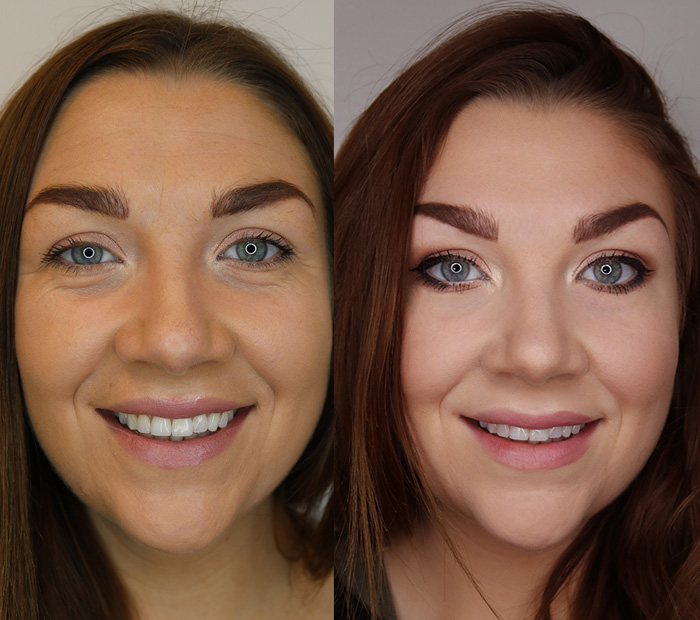 The Trend: Botox in the UK grows as more want to look ...