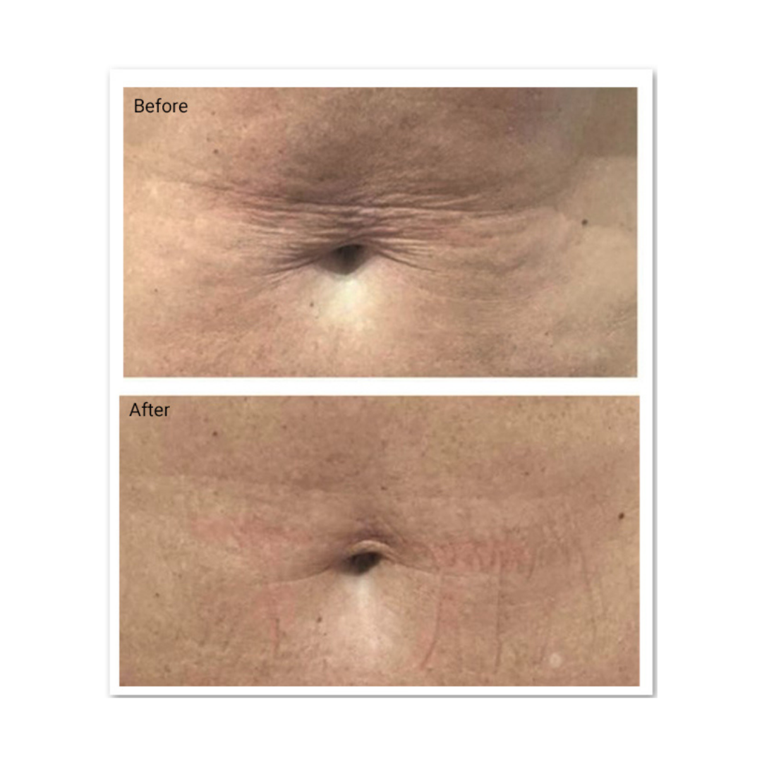 Profhilo treatment before and after