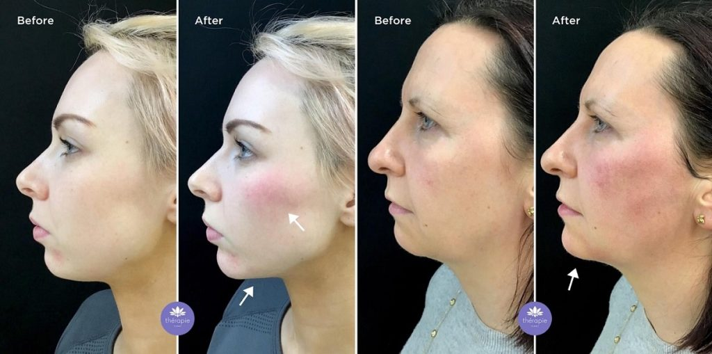 Dermal fillers before and after [image]