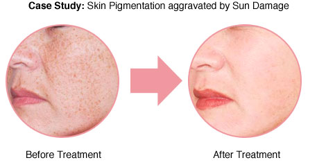 pigmentation-and-sun-spots-02